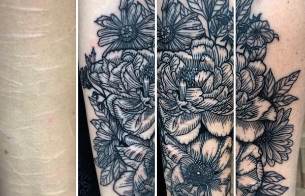 tatuagem cobertura cicatrizes The Scar Tattoo Whitney Develle