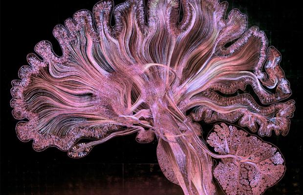 exames cérebro arte científica